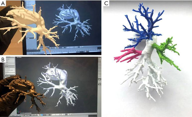 A patient-specific 3D-printed model of the pulmonary arteries