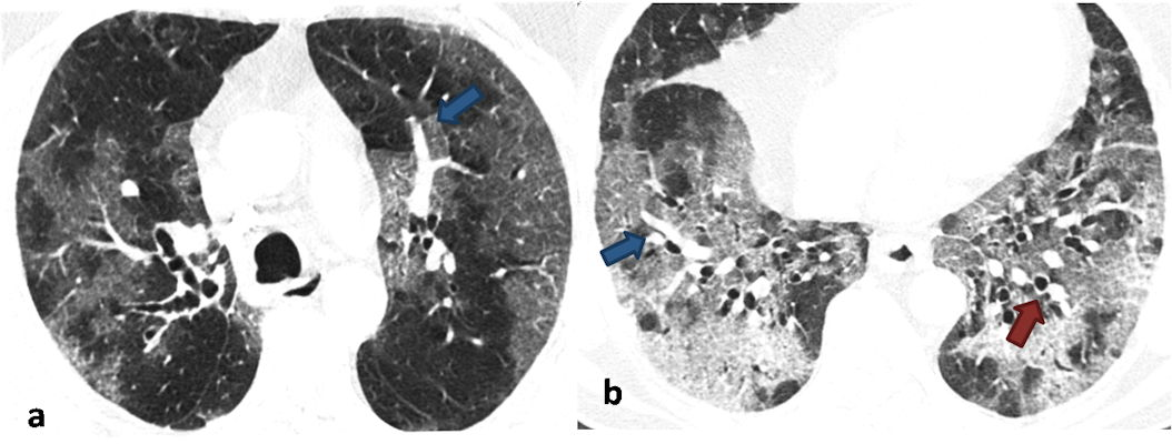 Noncontrast axial chest CT images in lung window settings of a 62-year-old male patient who tested positive for COVID-19