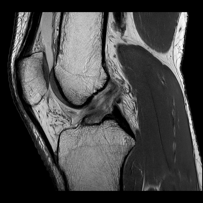 Sagittal MR image shows failure of the native ACL injury